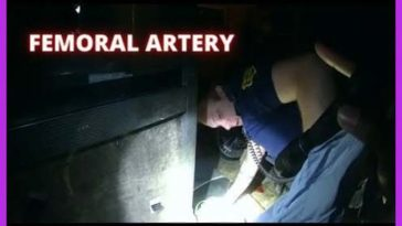 Police apply a tourniquet to man stabbed in the femoral artery saving his life
